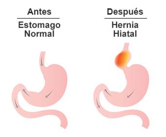 Hernia hiatal sintomas en espanol