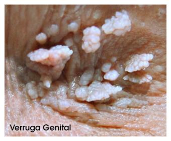 papiloma genital femenino