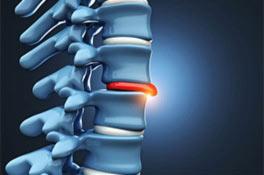 Qué causa una hernia de disco?