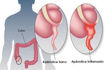 Qué es una apendicitis?