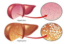 Qué es el hígado graso?