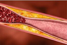 Estatinas para bajar el colesterol malo