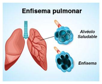 Qué es enfisema pulmonar?