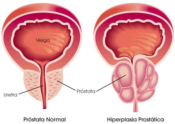 hiperplasia de prostata